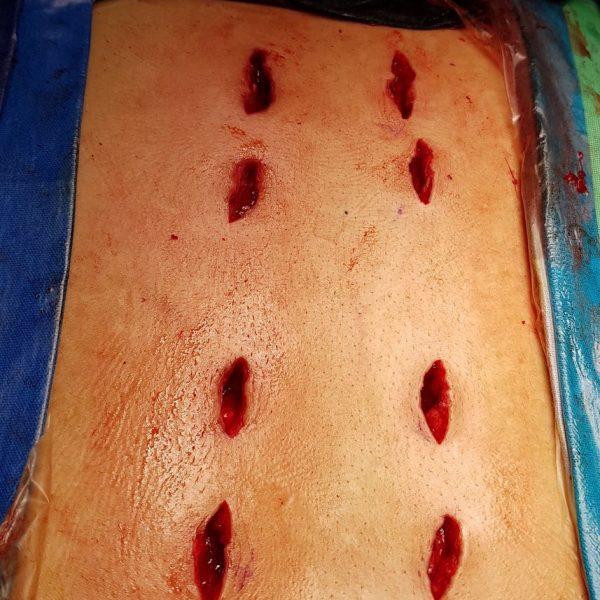 Spinal Treatment | DSpinal Treatment | Dr. Shekhar Chirmader. Shekhar Chirmade
